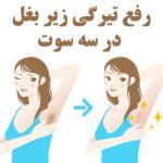رفع تیرگی زیر بغل و درمان سیاهی زیر بغل