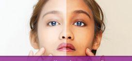 اسم بهترین کرم سفید کننده دست و صورت و بدن